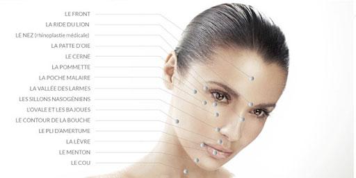 Points de traitement des rides du visage