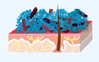 particules d'argent de MicroSilver BG